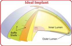 Ideal-implant