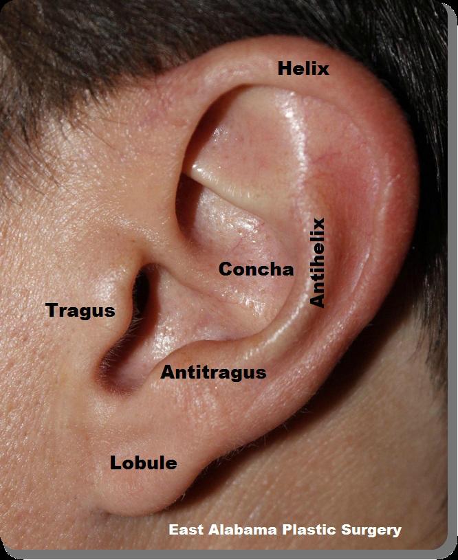 Brain surgery scar