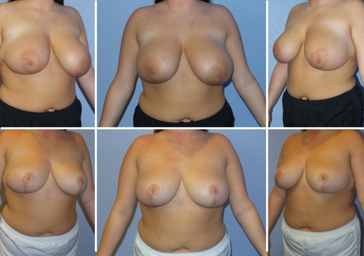 tuck acupuncture lift face lift tummy breast