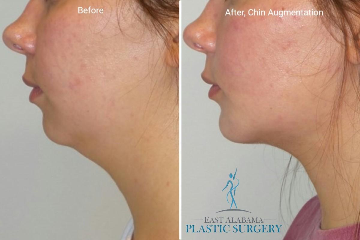 Chin Implant 1
